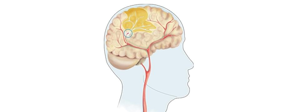 Stroke illustration