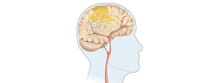 klinisk stroke vad är det