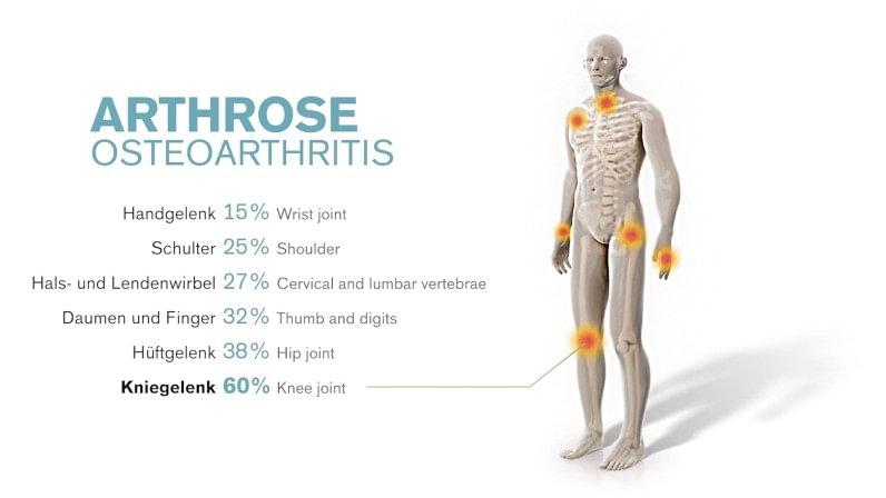 what causes osteoarthritis ottobock us