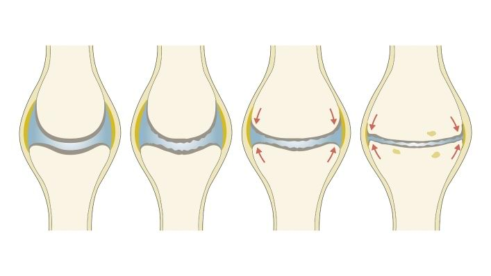 Diagram of knee joints with stages of osteoarthritis