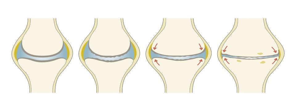 Diagnosing Knee Osteoarthritis