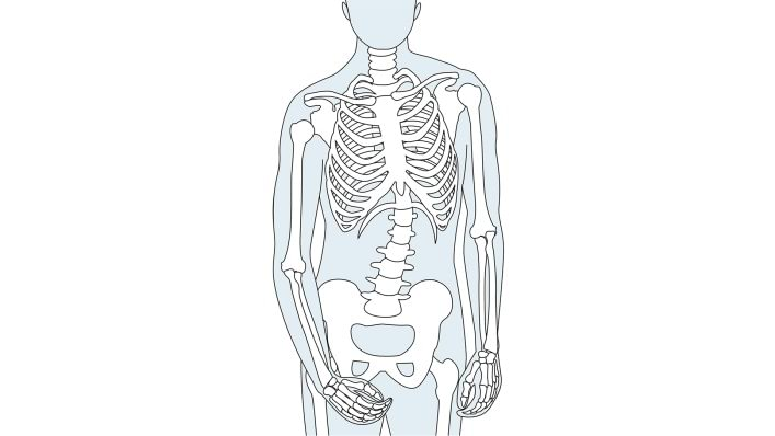 Skeleton after a stroke