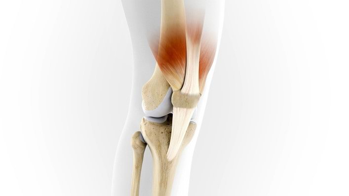 The mode of action of the Patella Pro is demonstrated