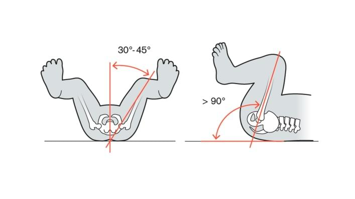 Illustration of the leg position with the Tubingen hip flexion and abduction orthosis