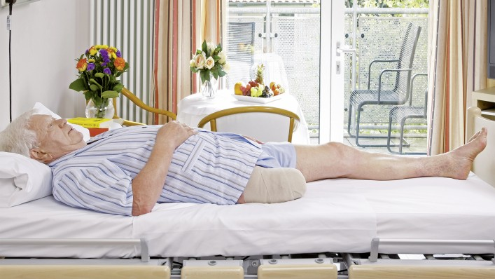 A man with a leg amputation is lying on his back in the hospital bed.