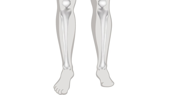Amputation Level | Leg, Foot, Below, Through & Above Knee