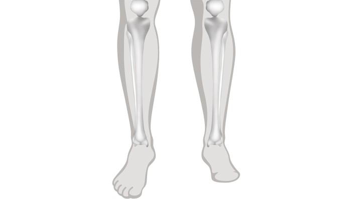 Ампутация тазобедренного сустава уплотнение коленного сустава фото