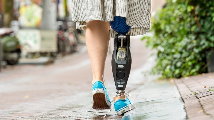 You can see Marije from behind with her Triton side flex prosthetic foot, which stands on the side of the curb.