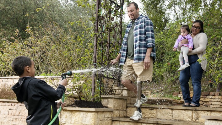 A family scene in the garden: The son sprays his father with a hose as he descends the stairs with his C-Leg.