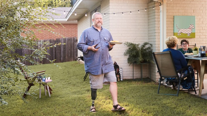 In his garden, Martin wears the Taleo prosthetic foot as he walks from the grill to the table.