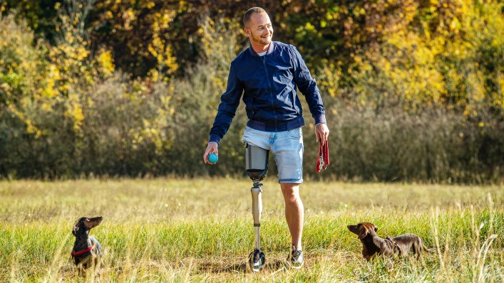 Image shows prosthesis wearer leaning against a tree in a park. He is playing with his small dog.