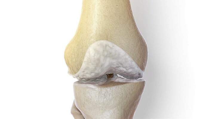 Medical illustration of a knee joint with osteoarthritis