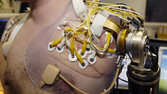 Prosthetic arm with intuitive, simultaneous control