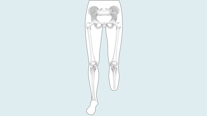 Drawing of the amputation level: lower leg