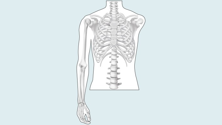 Drawing of the amputation level: shoulder disarticulation