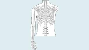 Drawing of the amputation level: shoulder disarticulation