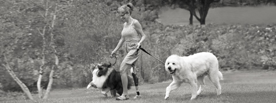 Lisa with C-Leg prosthesis taking her dogs for a walk.