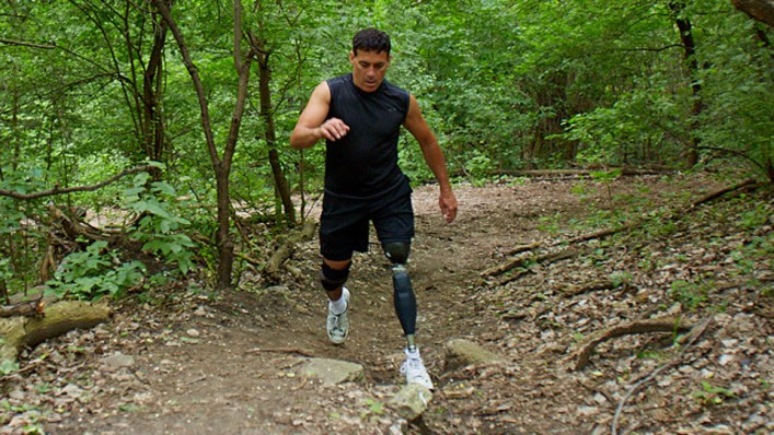 Running on the X3 prosthetic leg.